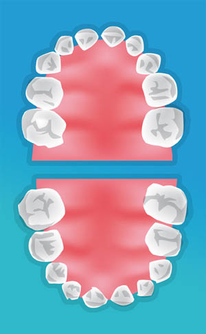 dentiste enfant saint cloud